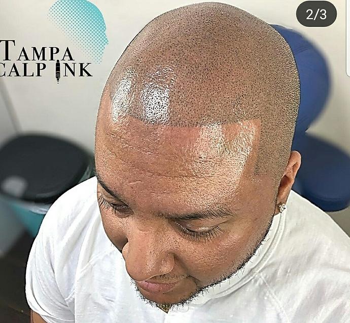 Tatuar La Calva Simulando Pelo Off Topic Sin Corte No